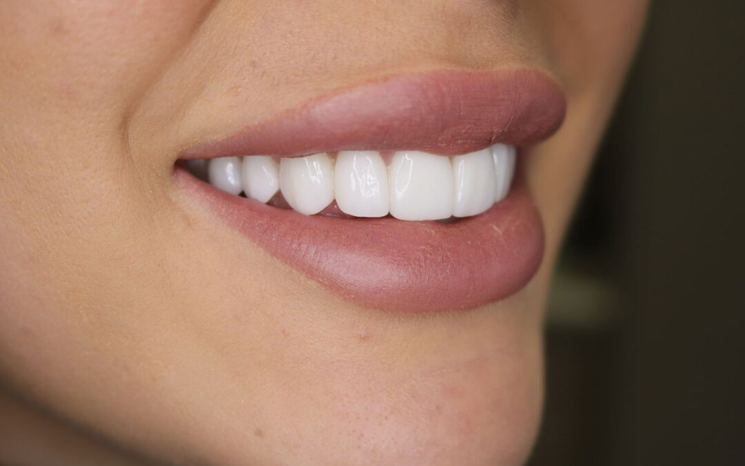 Do you have to shave most of my teeth down to get veneers?